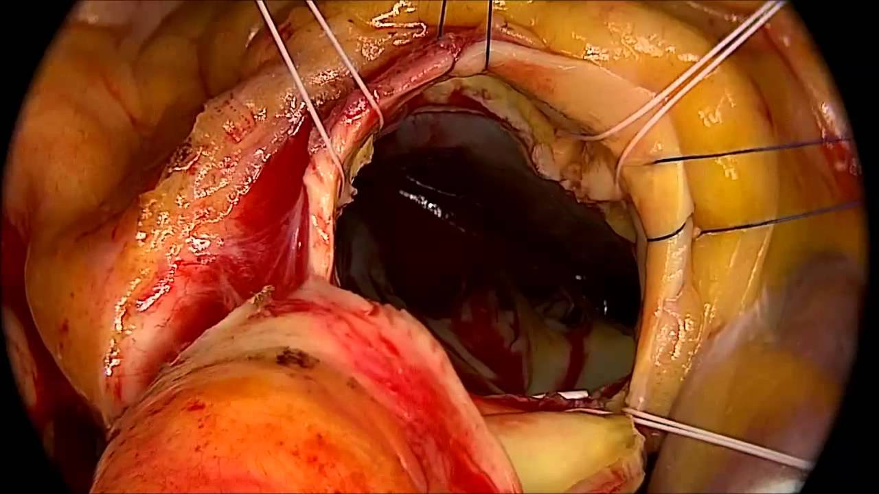 Pediatric Aortic Valve Replacement,Aortic Valve Surgery India,AVR ...