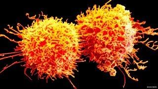Les Scientifiques Affirment Qu'il Existe Un Remède Contre Le Cancer Qui Sera Prêt Dans Un An