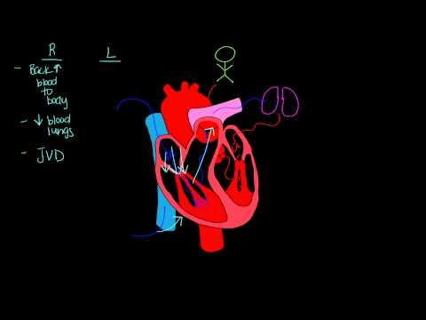 Left sided vs. Right sided heart failure