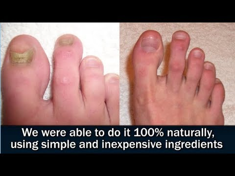 Japanese Toenail Fungus Code Review-Learn Free Home Remedy Here!