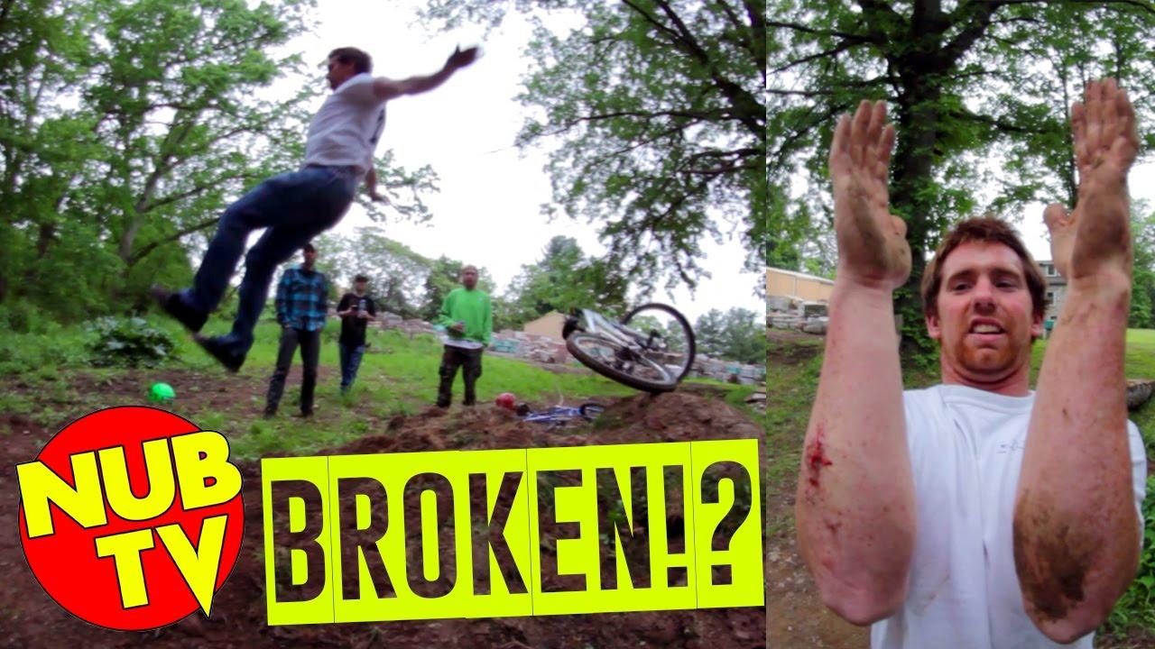 FUNNY BIKE JUMP FAIL (BROKEN WRIST)