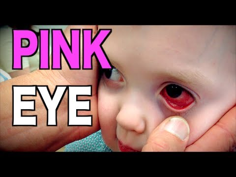 PINK EYE:  Diagnosis Conjunctivitis  Dr Paul