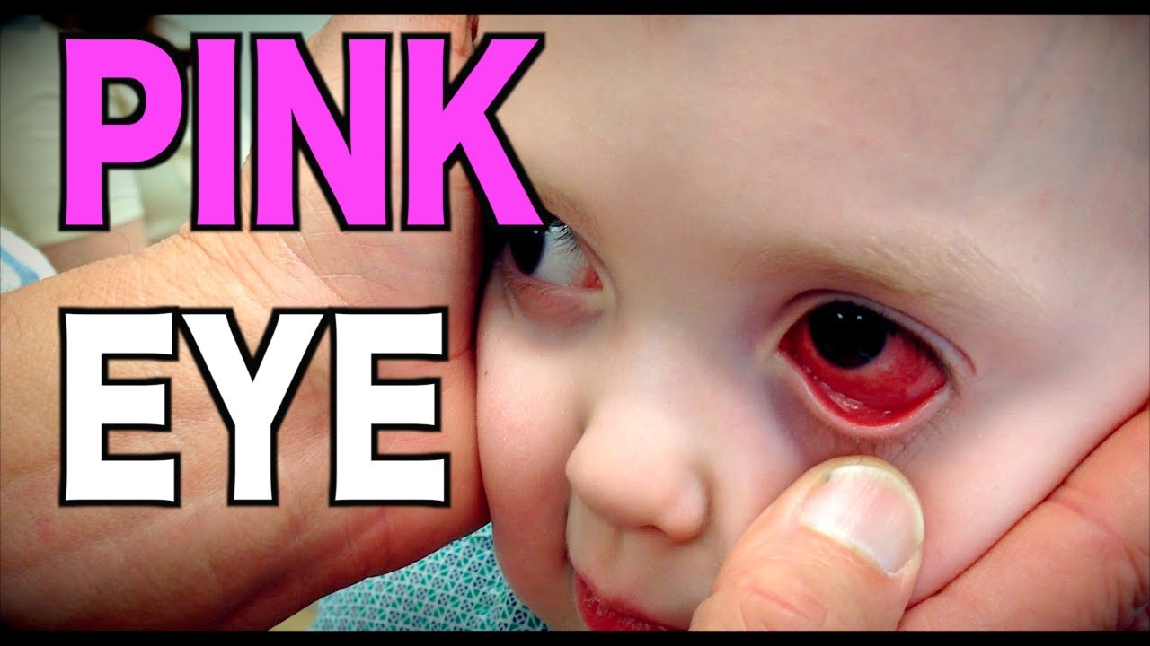 PINK EYE: Live Diagnosis (Conjunctivitis) | Dr. Paul - YouTube
