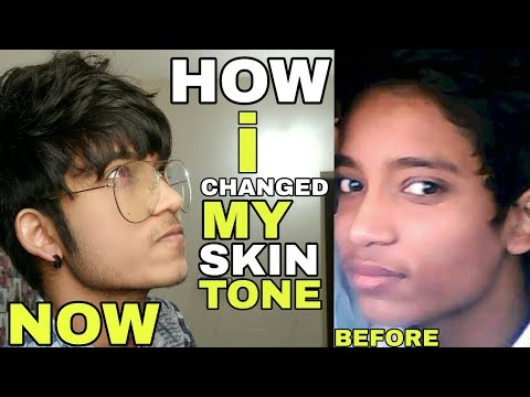 How To Get Fair Skin | Hindi | How Did I Changed My Skin Tone | Does Fairness Cream Work