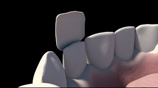 3d Animation of The Placement Of Dental Veneers - NYC Dentist - Dr. Simon Rosenberg