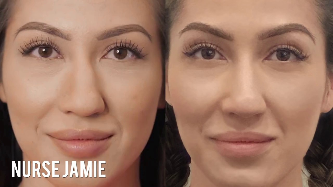 Before and After - Non-Surgical Nose Job | Nurse Jamie