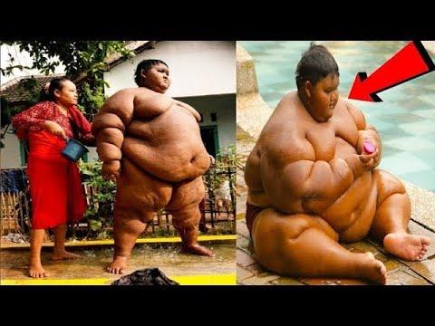Я не верю, что похудел. Самый толстый мальчик в мире , сбросил 100 кг