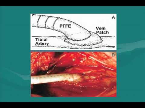 Surgical Approaches For Peripheral Arterial Disease (PAD)