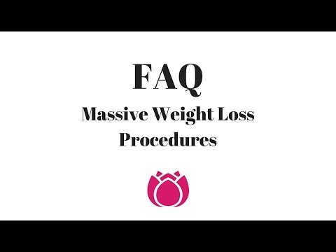 FAQ | Massive Weight Loss Patients | Cosmetic Surgery Affiliates