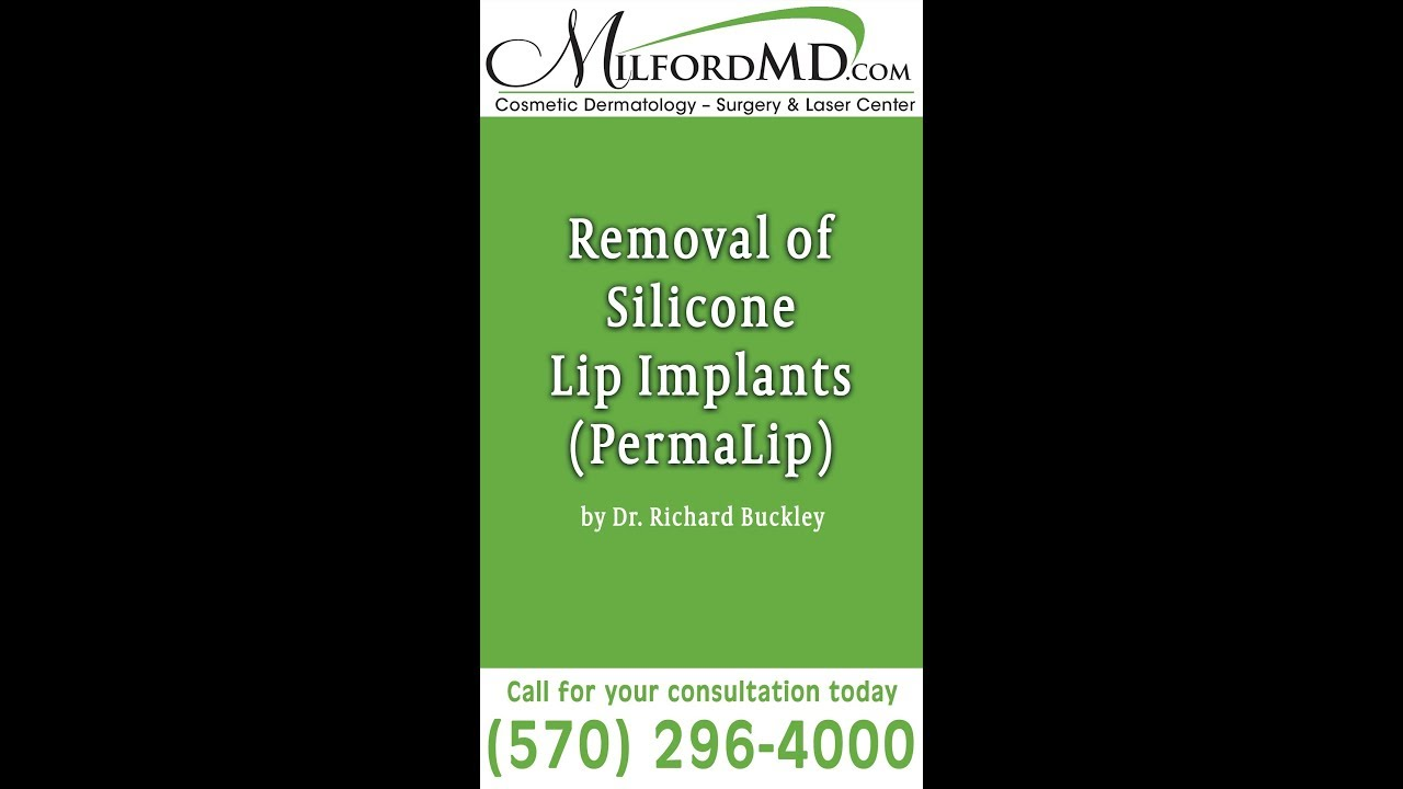 Silicone Lip Implant (PermaLip) Removal