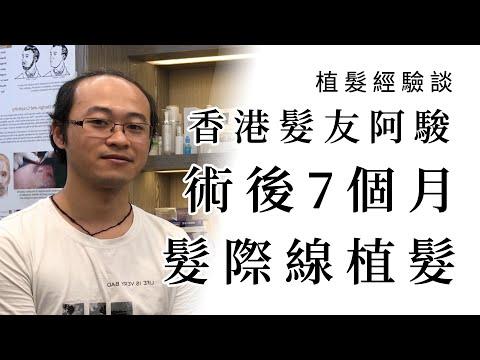 植髮經驗談 │ 阿駿慕名來台! 7個月後髮際線重獲新生 │ 林宜蓉醫師 Dr.Yi Jung Lin 台灣植髮 Taiwan hair transplant