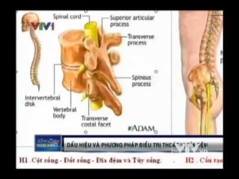 Dấu hiệu và phương pháp điều trị thoát vị đĩa đệm - Đài truyền hình Việt Nam
