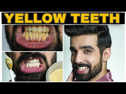 Teeth Whitening At Home Hindi Youtube