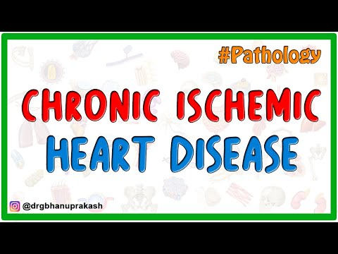 Chronic Ischemic Heart Disease - Pathology USMLE Step 1