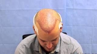 fue by dr reddy 32 year old gentleman with norwood 5a 3217 grafts 8412 hair