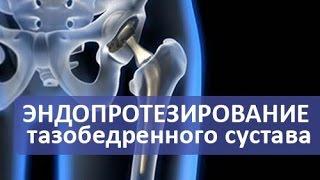 Эндопротезирование тазобедренного сустава. Операция эндопротезирования тазобедренного сустава.(Эндопротезирование тазобедренного сустава и виды эндопротезов. https://goo.gl/QnsR8y В этом видео врач травматолог..., 2016-10-28T10:45:29.000Z)
