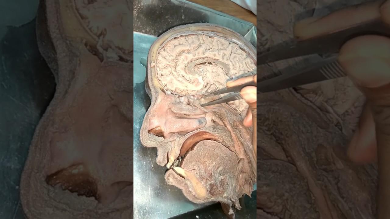 hemi section of brain anatomy