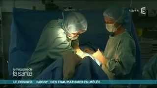 Rupture complète tendon ischio-jambier réparation chirurgicale