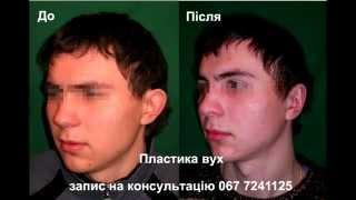 Пластика ушей, ушных раковин. Пластический хирург Андрей Резник