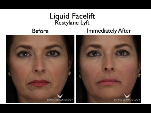 Restylane Lyft: The 15-Minute Facelift  Dermatologist Leyda Bowes  demonstrates  Telemundo/NBC