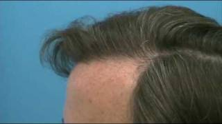 Best Hair Transplants - Dr Wong - 4000 Grafts - 1 Session