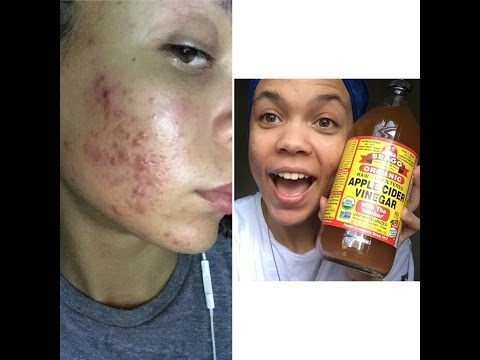 how-im-curing-my-acne!