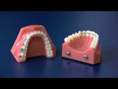 Kentucky Orthodontics & Invisalign: Fixed Retainer