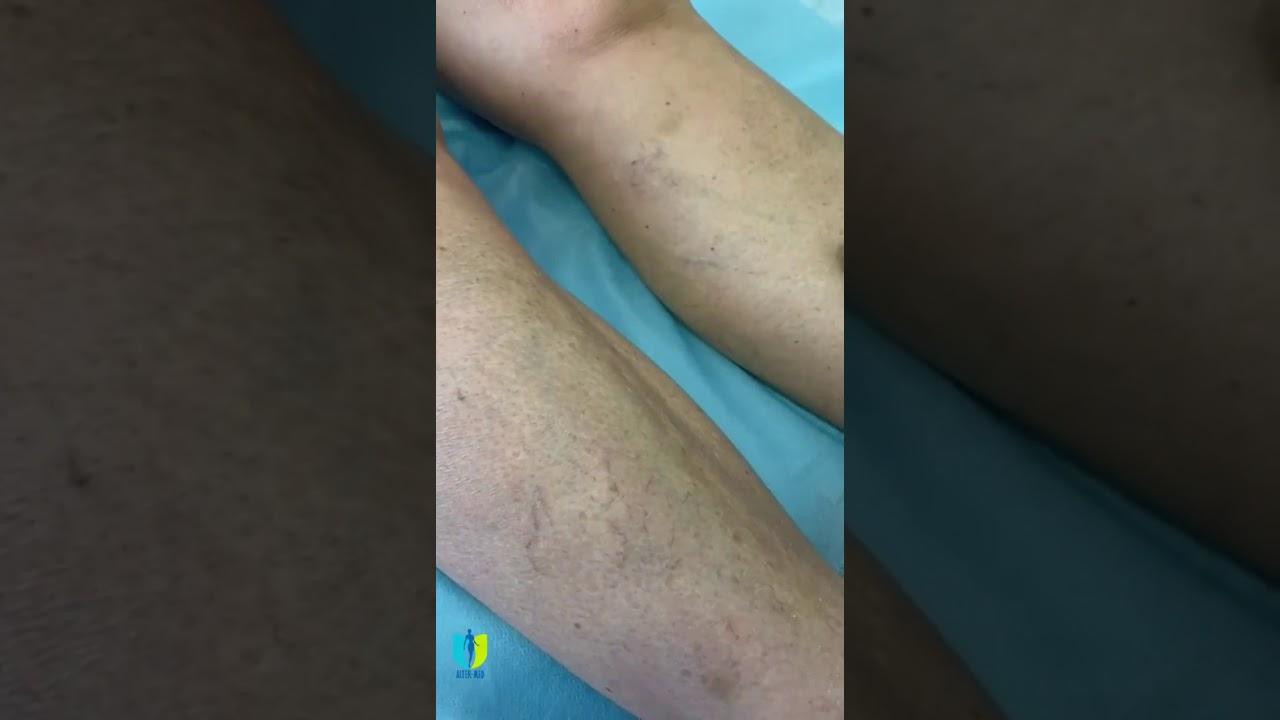 varicoză picioare de fotografie