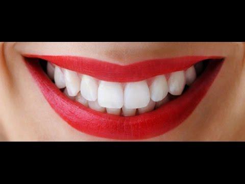Bicarbonato E Limao Dentes Brancos Em 1 Semana Youtube