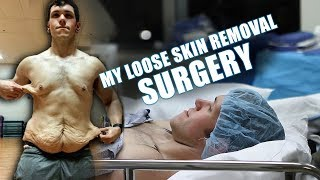 My Loose Skin REMOVAL Surgery