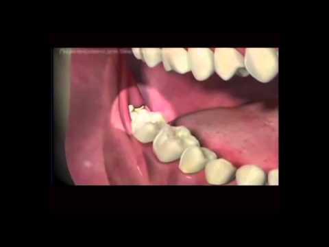 Ответы@: Больно удалять зуб с кистой?