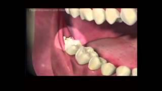 Как происходит удаление зуба(Условия: 100 и более подписчиков 3 000 и более просмотров самого канала Преимущества работы с AIR: - официальный..., 2015-01-28T07:26:45.000Z)