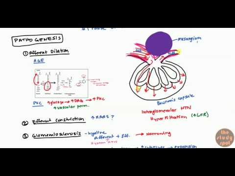 Diabetic Nephropathy for USMLE Step1 and USMLE Step 2