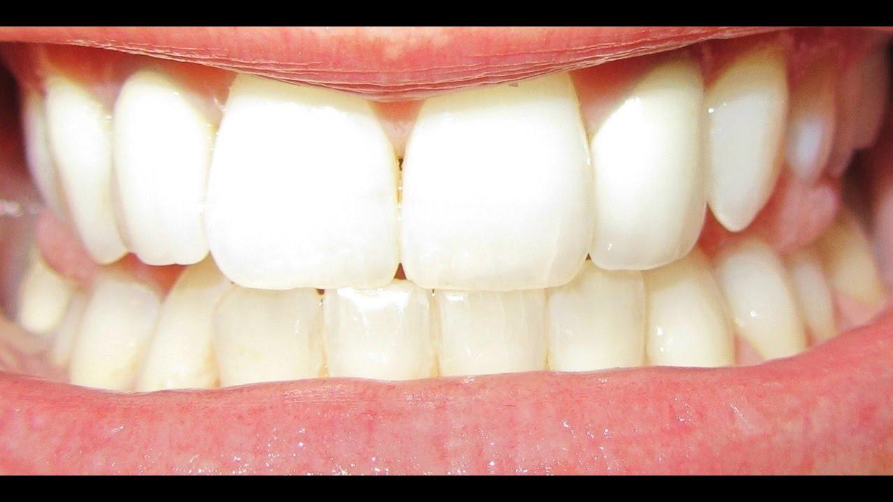 Como Clarear Os Dentes Em 3 Minutos Sem Danificar E Sem Gastar