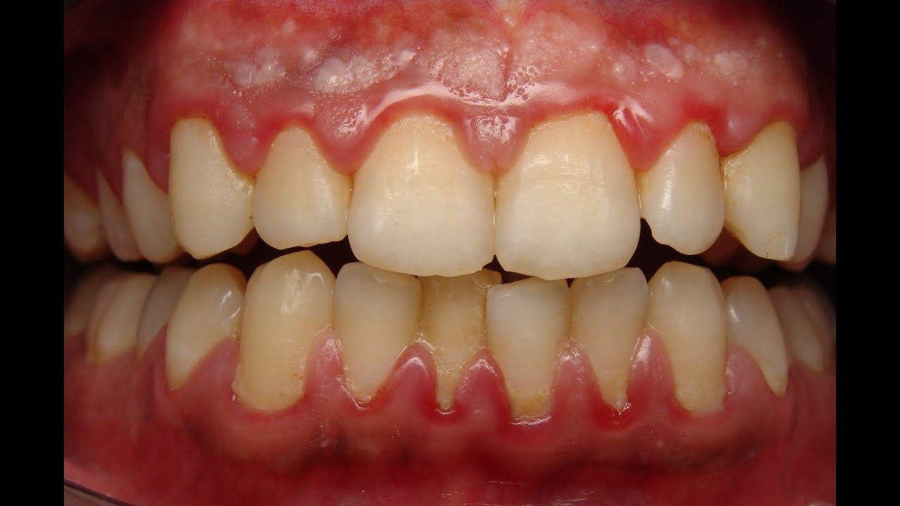 How to remove inflammation of the gums 36