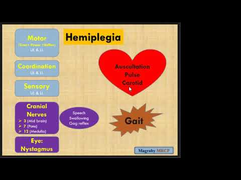 Neurology Examination MRCP PACES (Lecture 8) (Hemiplegia Part 1)