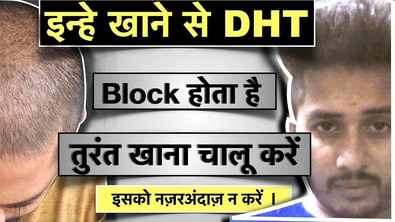 Natural DHT Blocker Foods   इन्हे खाने से DHT