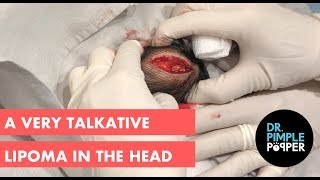 A Very Talkative Lipoma in the Head