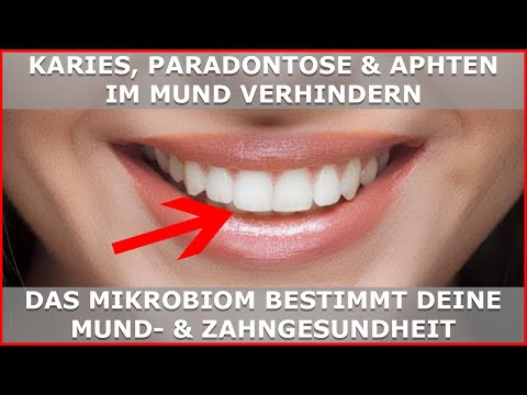 Karies, Paradontose & Aphten entstehen im MIKROBIOM - Zahngesundheit dauerhaft verbessern