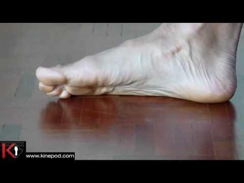 hyperpronation du pied