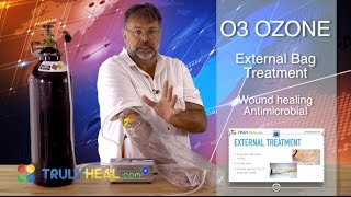 External treatment with ozone O3. Ozone bagging for wound healing. ...