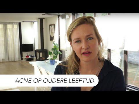 Acne op oudere leeftijd | Dermatoloog Drs Leenarts