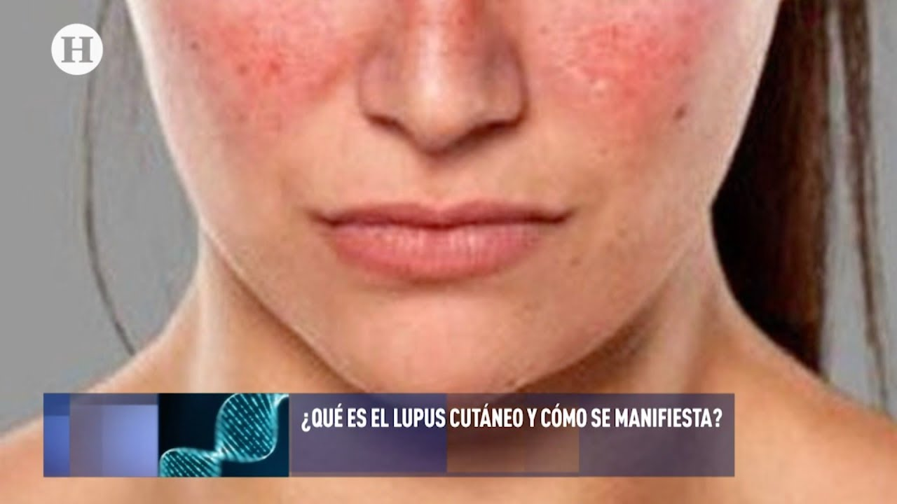 Lupusul eritematos cutanat - Dr. Mihai Lupu - medic specialist dermatolog Cancer de piele lupus