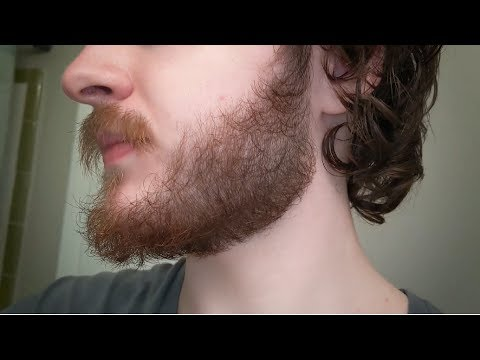 minoxidil-for-beard-growth:-day-294-//-42-week-progress