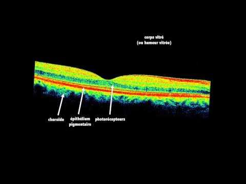 Tomographie par cohérence optique (ophtalmologie) (OCT, Optical cohérence tomography) (principe)