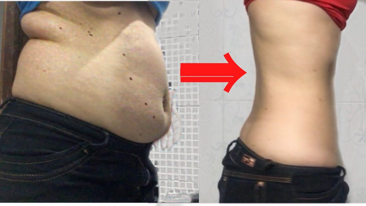pierde abdomen gras)