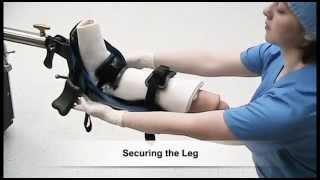 Allen Medical | Allen® Traction Boot | Sales Video