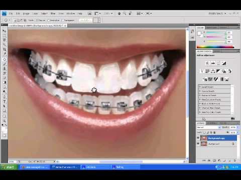 how to whiten clear braces
