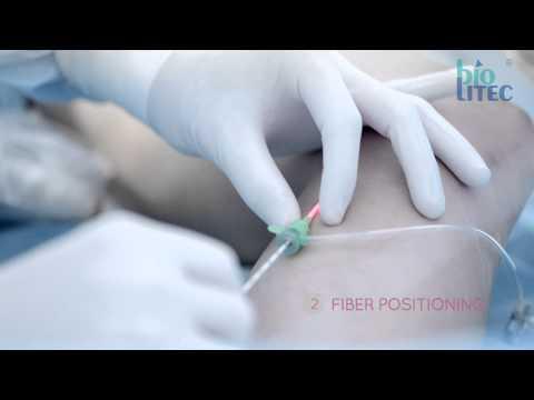 biolitec® medical laser: ELVeS Radial 2ring™ - Laser Therapy today