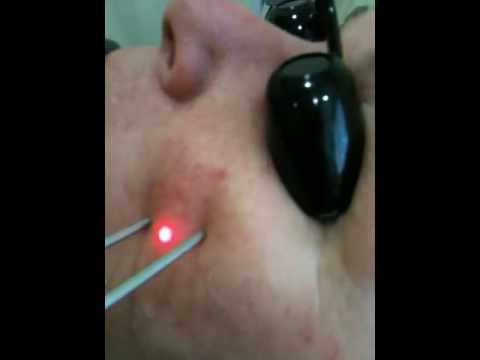 Sydney skin laser clinic facial rejuvenation